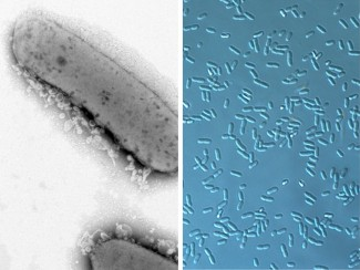 Three side-by-side microscopy images of the alphaproteobacteria Rhodobacter sphaeroides, Zymomonas mobilis, and Novosphingobium aromaticivorans